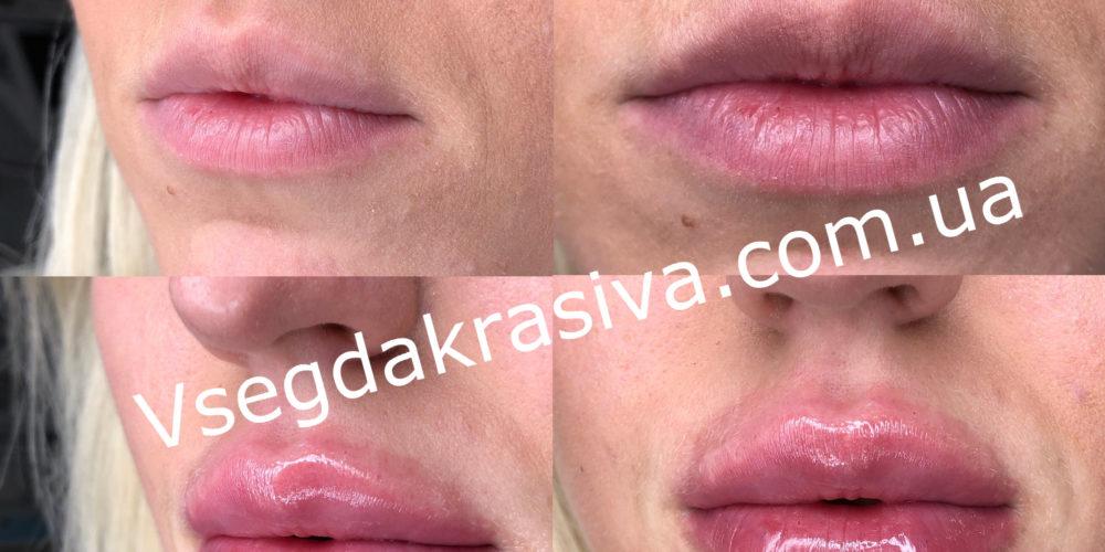 Увеличение губ в Одессе
